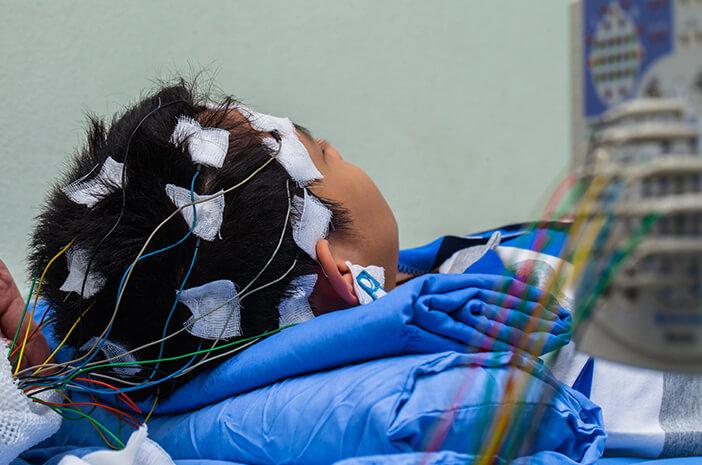 Ketahui Penjelasan Tentang Electroencephalography (EEG)