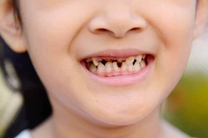 Cegah Baby Bottle Tooth Decay pada Bayi dengan Cara Ini