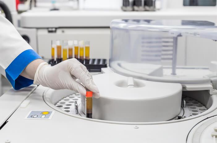 2 Pemeriksaan Laboratorium untuk Mendiagnosis Penyakit Tifus