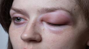 2 Pencegahan Angioedema yang Bisa Dilakukan