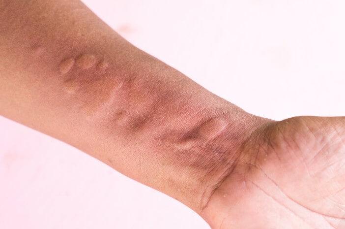 3 Jenis Obat untuk Atasi Alergi Dingin