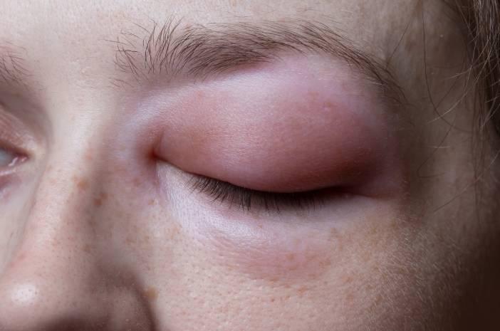 4 Hal yang Bisa Tingkatkan Risiko Angioedema