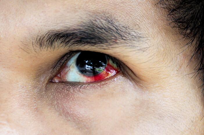 5 Penyebab Bercak Merah pada Mata