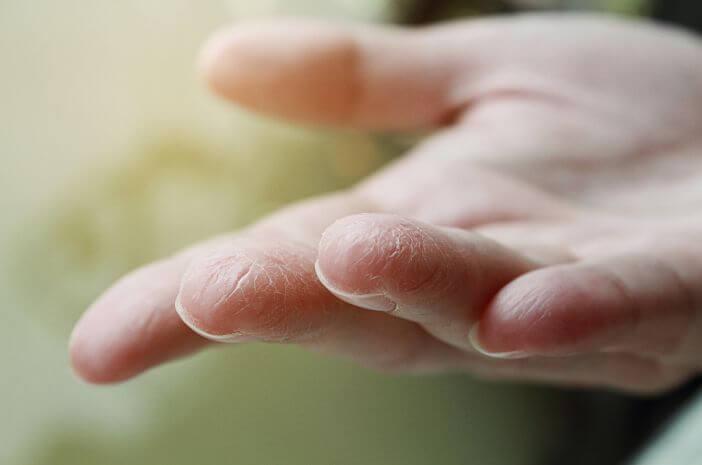 5-dampak-dehidrasi-pada-kulit-saat-puasa-halodoc