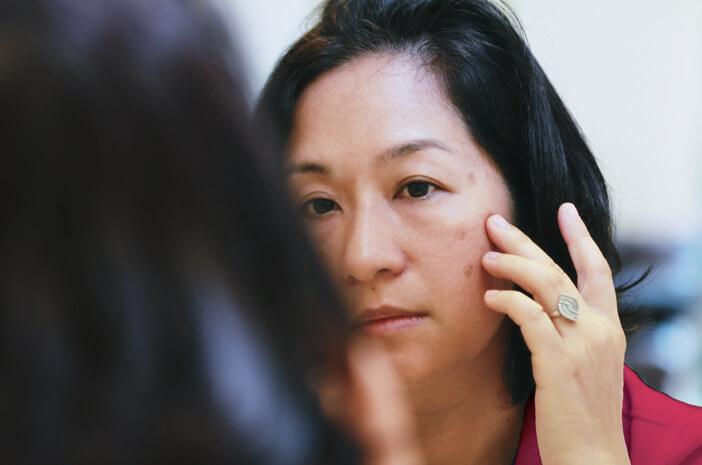 6 Cara Cepat Hilangkan Flek Hitam