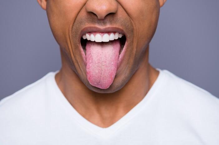 7 Gejala Oral Thrush yang Perlu Diwaspadai