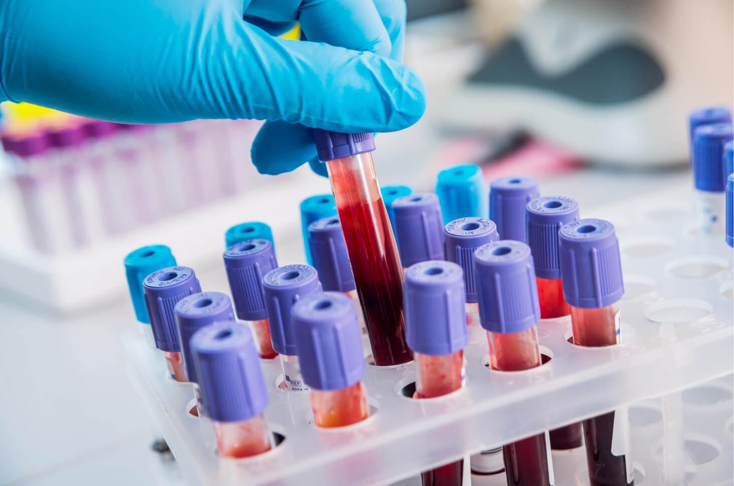 tahapan tes hematologi, sel darah merah, sel darah putih, trombosit