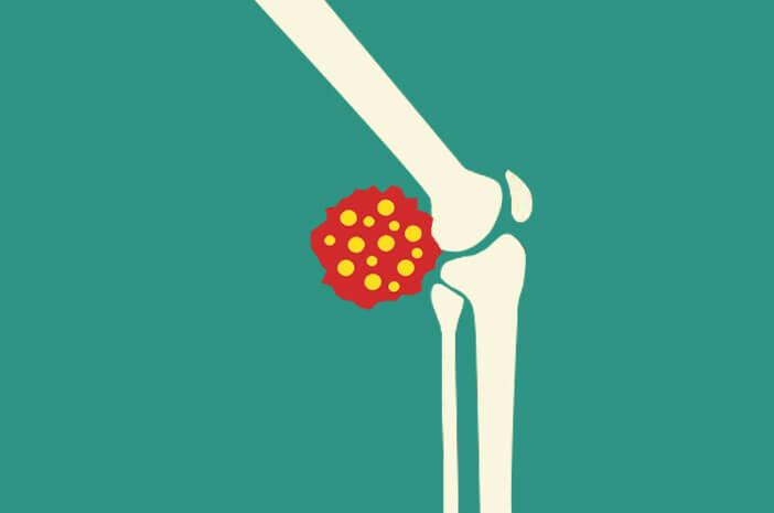 osteosarcoma, gangguan tulang, penyakit keturunan tulang