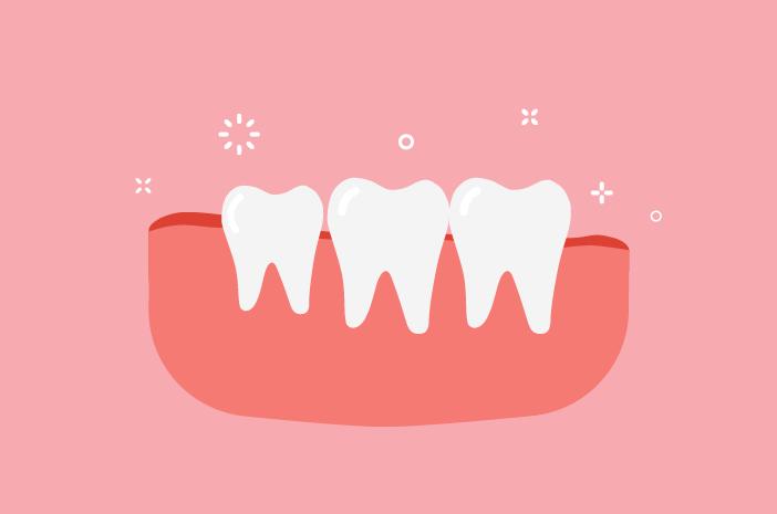 gigi bungsu bermasalah, gigi bungsu, dalam tulang rahang