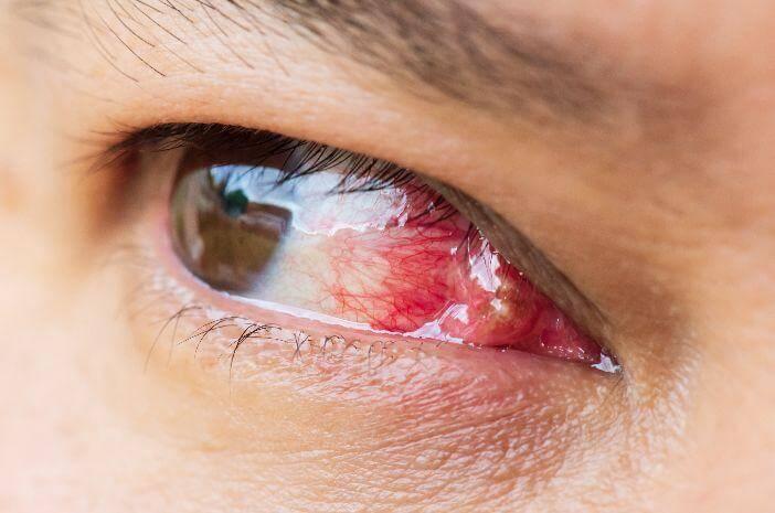 Pterygium, penyakit mata