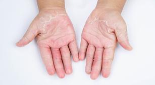 Hindari Dermatitis Kontak Lewat 4 Tips Simpel Ini