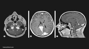 neurofibromatosis, gangguan pada tulang