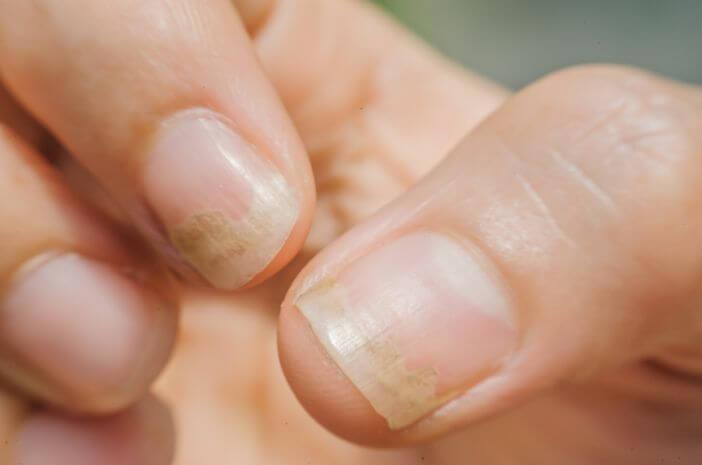 Ini Pencegahan yang Bisa Dilakukan agar Terhindar dari Onychomycosis