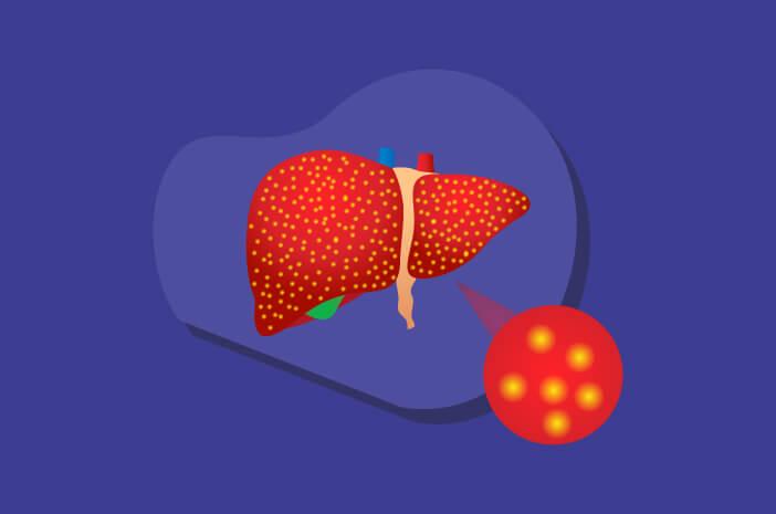 Adakah Cara untuk Mencegah Hemokromatosis?
