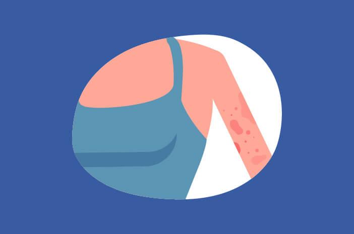 Dermatitis Herpetiformis, Cara untuk Mencegah Dermatitis Herpetiformis,