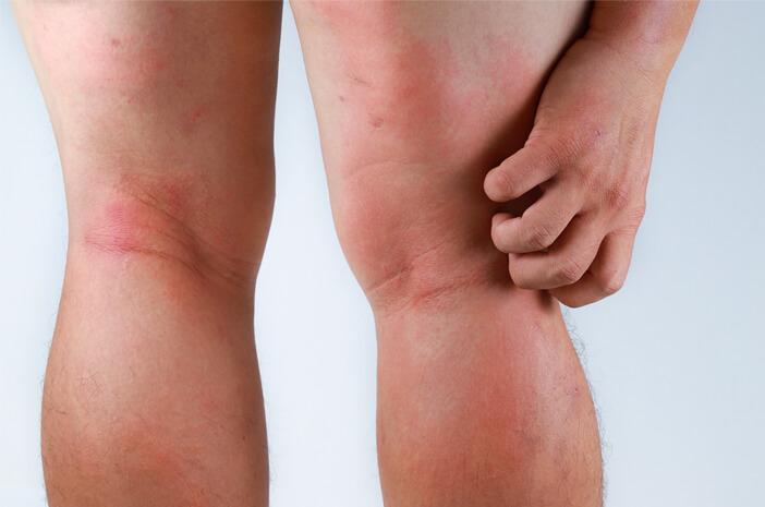 Adakah Pengobatan Rumahan untuk Dermatitis Herpetiformis?
