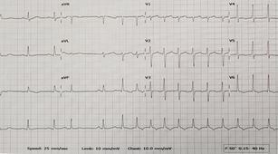 Adakah Pengobatan untuk Atasi Supraventricular Tachycardia?