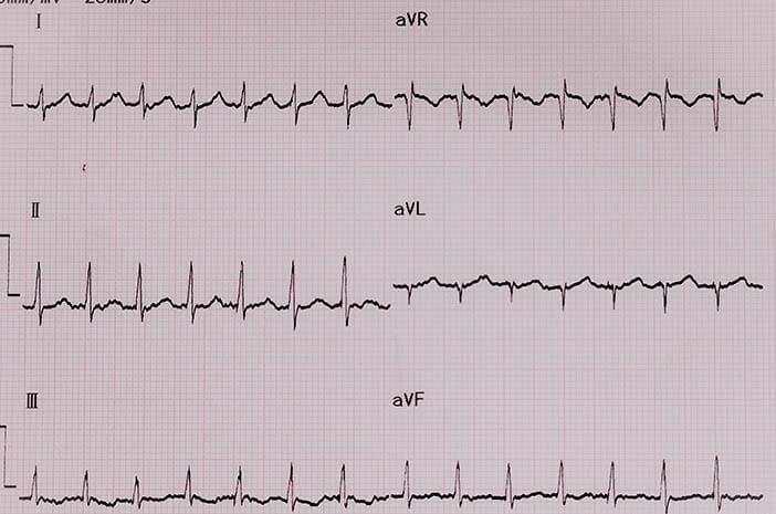 Adakah Pencegahan untuk Kondisi Supraventricular Tachycardia?