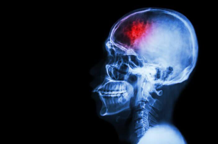 mencegah epidural hematoma, cedera kepala
