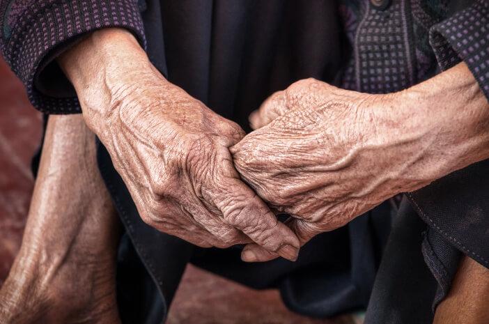 alami-progeria-seorang-remaja-terlihat-seperti-nenek-nenek