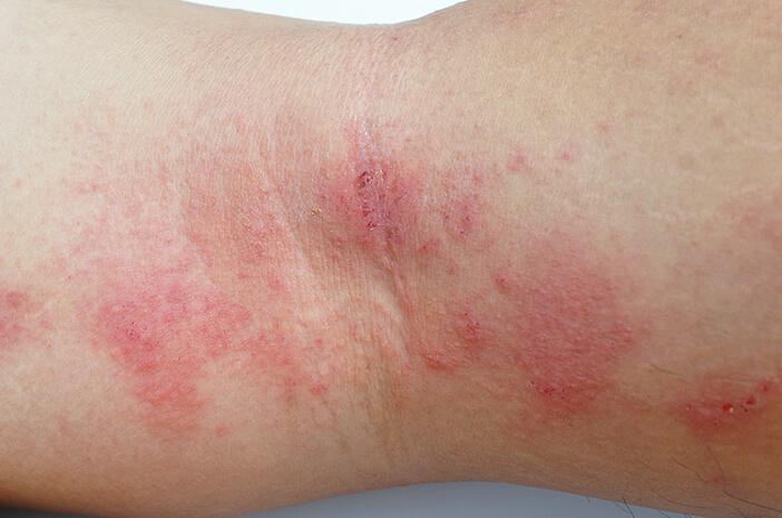 Idap Nekrolisis Epidermal Toksik, Ini Dampak Bagi Tubuh
