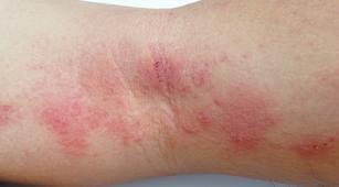 Idap Nekrolisis Epidermal Toksik, Ini Dampaknya Bagi Tubuh