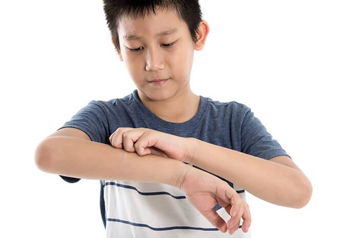 Alasan Enggak Boleh Asal Pilih Obat Gatal untuk Kulit Anak
