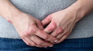 Alasan Penyakit Lupus Bisa Picu Nekrolisis Epidermal Toksik