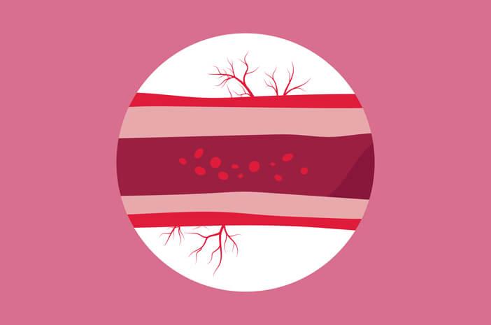 Alasan Pembuluh Darah Meradang Dapat Sebabkan Penyakit Henoch Schonlein Purpura