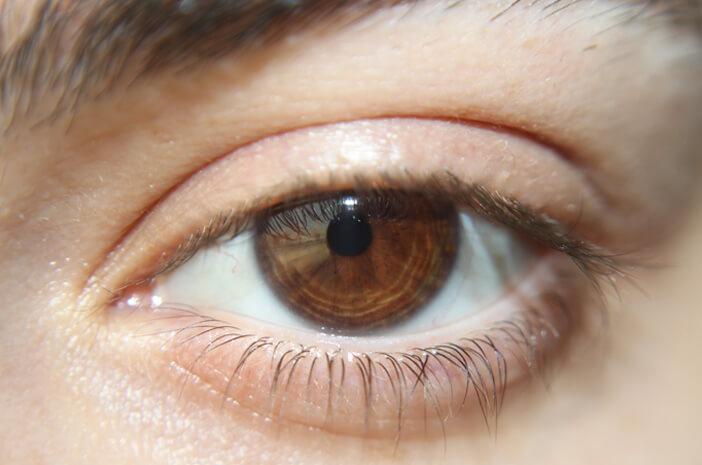 Alasan Sindrom Horner Hanya Menyerang Satu Sisi Wajah