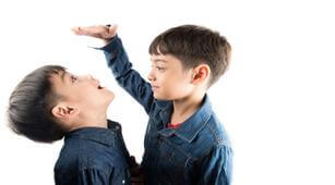 Anak Idap Gigantisme, Perlukah Pendampingan Psikolog?