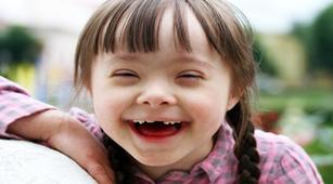 Jangan Malu Punya Anak Sindrom Down