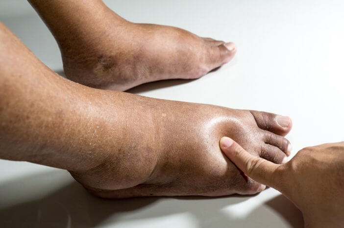 Apa Tanda Penyakit Beri-Beri Harus Diperiksakan ke Dokter?
