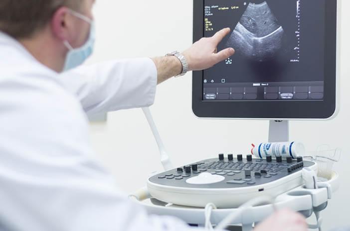 Apa Bedanya Echocardiografi dan Strees Echocardiogram?