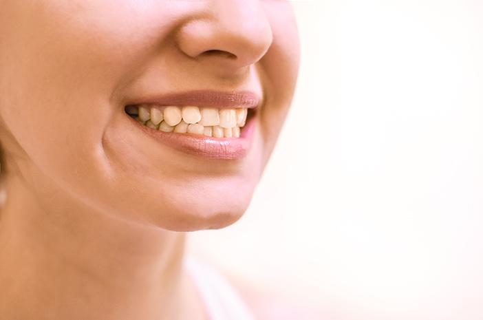 3 Metode Pengobatan untuk Mengatasi Gigi Gingsul