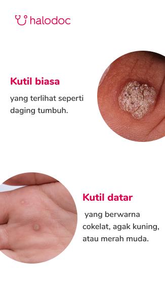 papiloma atau kutil micoză între tratarea degetelor