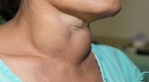 Muncul Lipoma di Tubuh, Apa yang Harus Dilakukan?
