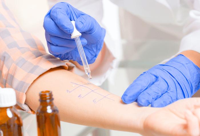 Apa Saja Tanda Alergi Obat Antibiotik & Bagaimana Penanganannya?