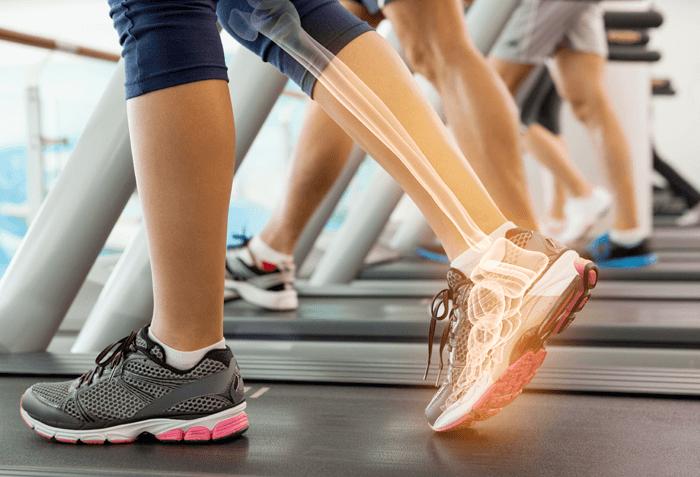 Pengapuran Tulang Bisa Diatasi dengan 5 Cara Ini
