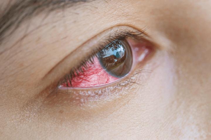 6 Risiko Sakit Mata Akibat Soflens