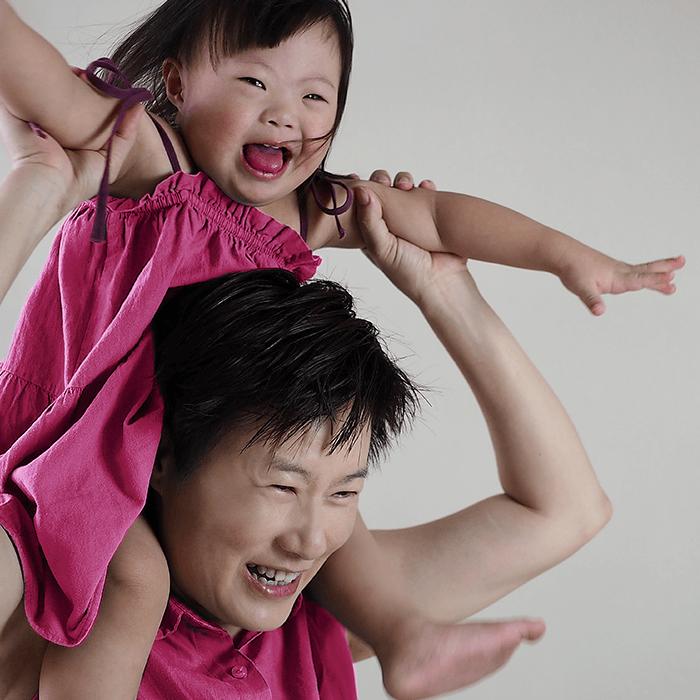 Tips Merawat Anak dengan Down Syndrome