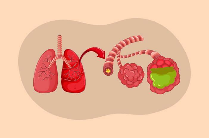 Perlu Tahu, Kondisi yang Bisa Menyebabkan Pneumonia Aspirasi