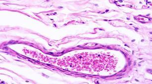 Awas, Faktor-Faktor Ini Bisa Tingkatkan Risiko Amiloidosis