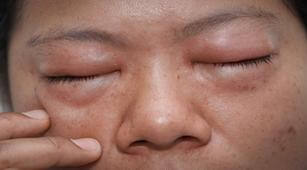Bagaimana Cara Penyakit Chagas Didiagnosis?