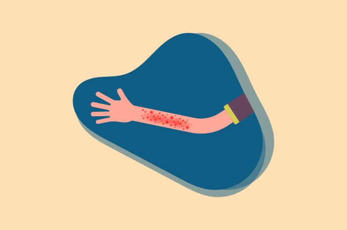 Bagian Tubuh yang Rentan Terkena Dermatitis Numularis