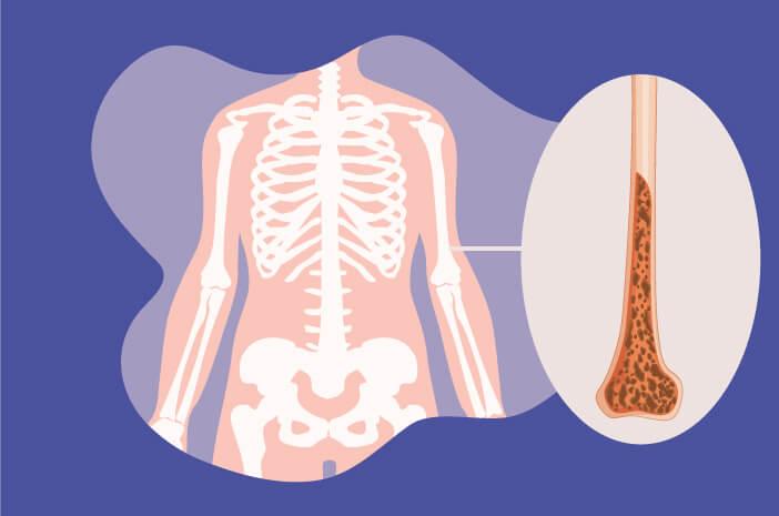 Ketahui Penyebab Terjadinya Osteoporosis