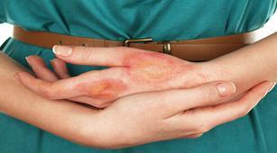 gangguan kulit berbahaya