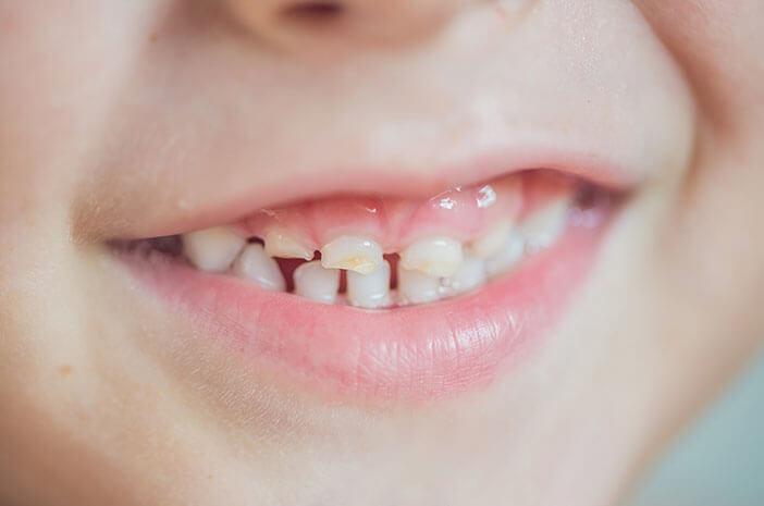 Kerusakan Gigi Bayi, Ini Diagnosis Baby Bottle Tooth Decay