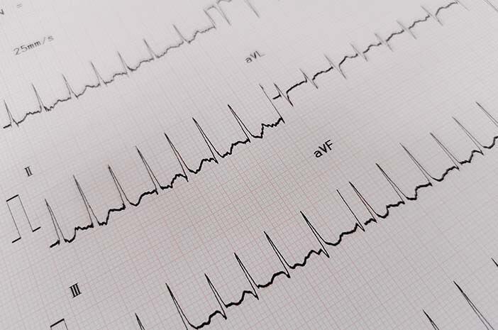 Begini Tes Diagnosis untuk Deteksi SVT