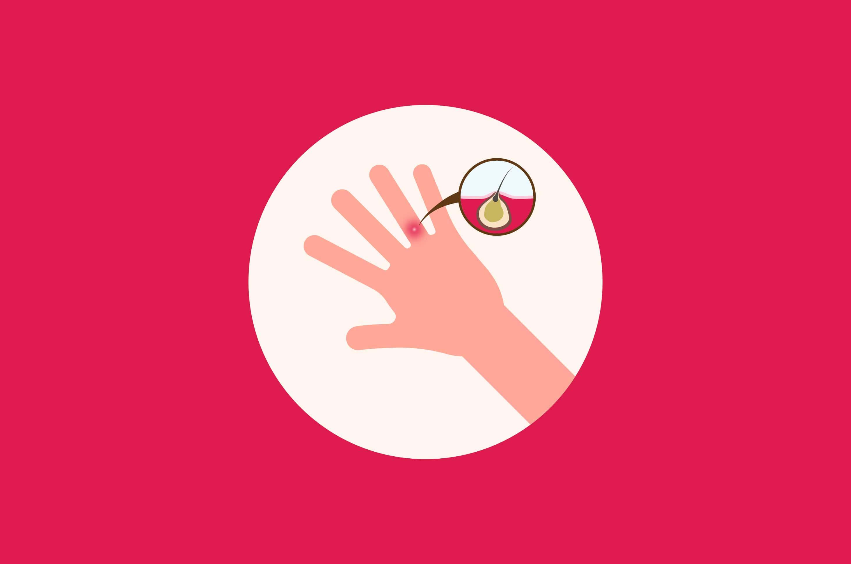 Begini 5 Cara untuk Mencegah Phlegmon